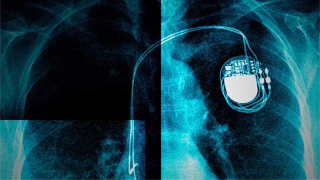 photo 59 médias partenaires réunis autour de l'icij (le consortium international des journalistes d'investigation) révèlent un nouveau scandale de santé autour des dispositifs médicaux. © photo : capture d'écran youtube / le monde